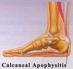 Calcaneal-Apophysitis