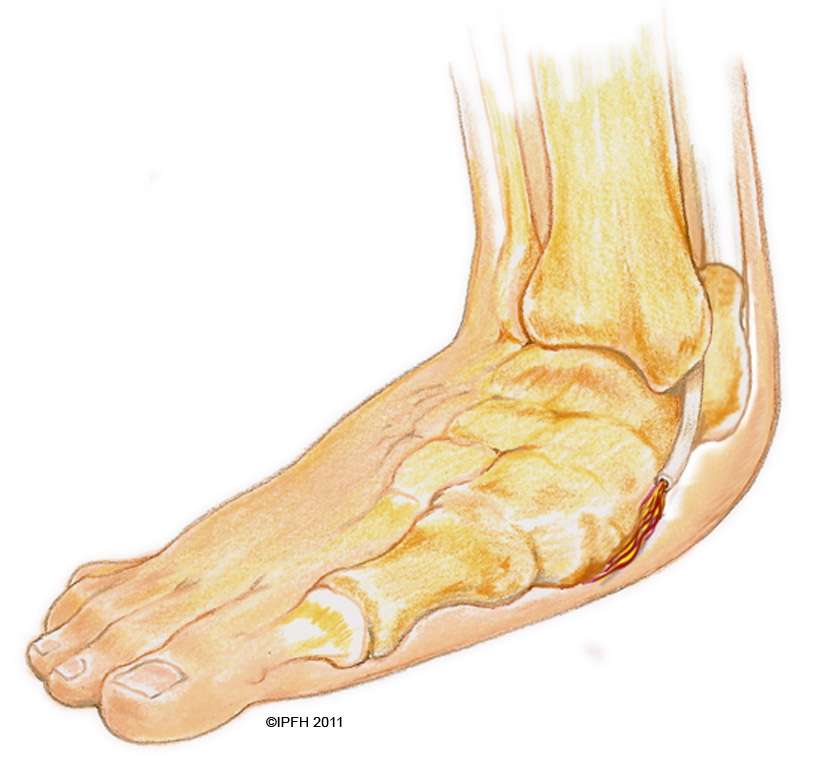 Center for Foot and Ankle Surgery – Adult Acquired Flatfoot
