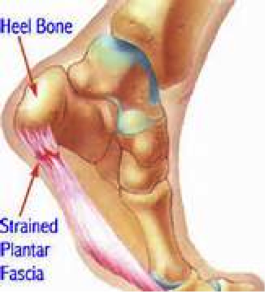 Center for Foot and Ankle Surgery – Plantar Fasciitis