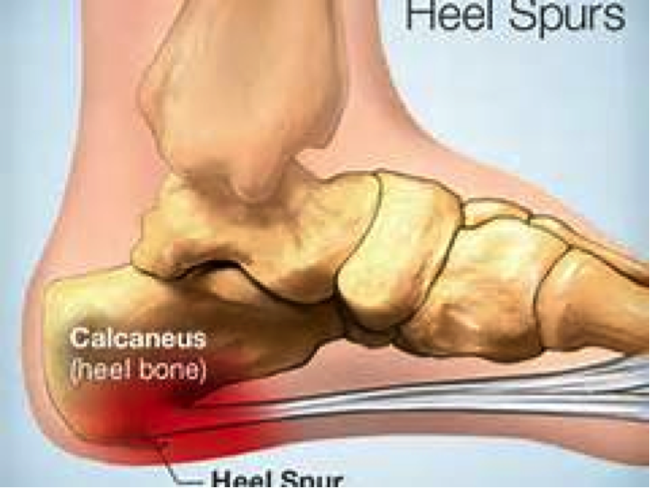 watch youtube planter plantar planters surgery fasciitis