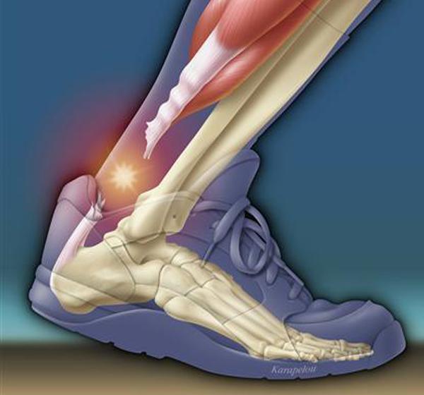 achilles-tendonopathy-3
