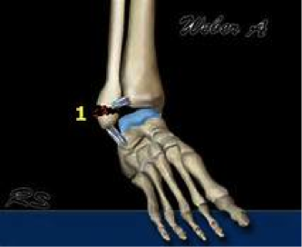 ankle-fractures-1
