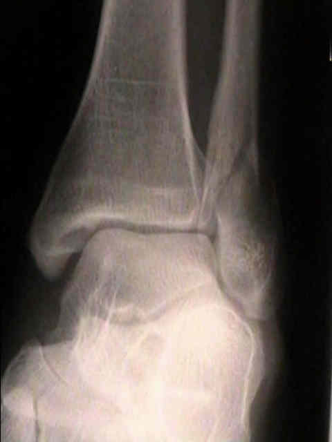 ankle-fractures-4