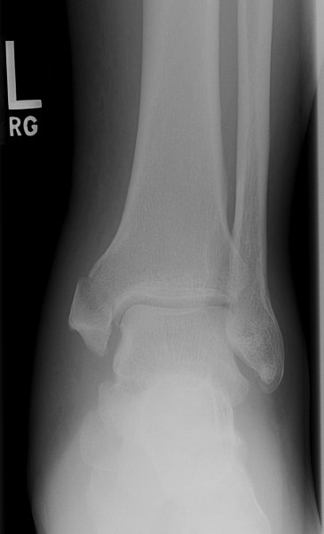 ankle-fractures-6