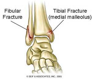 ankle-fractures-8