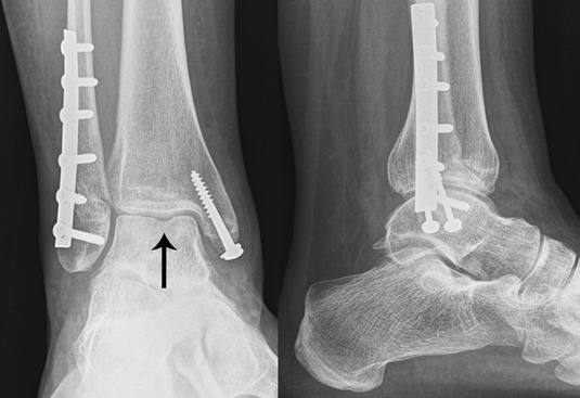 ankle-fractures-9