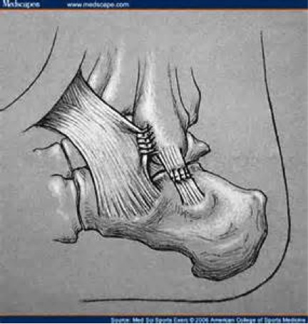 ankle-instability-3