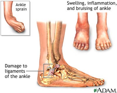 ankle-sprains-1