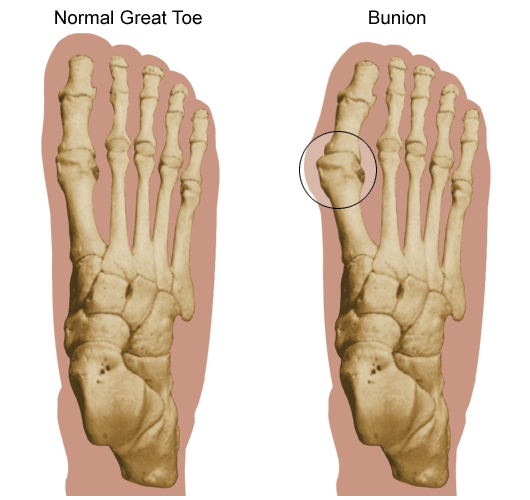 Center for Foot and Ankle Surgery – Bunion