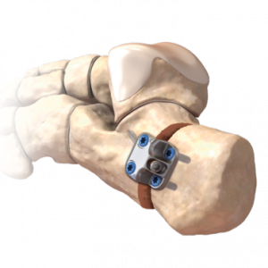 calcaneal_osteotomy_0-large-300x300
