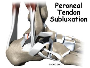 peroneal-tendinopathy-2