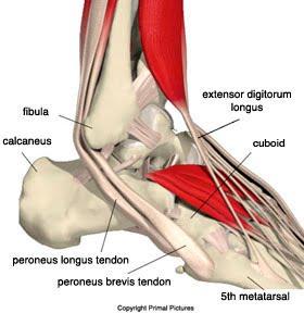 peroneal-tendinopathy-3