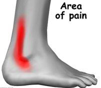 peroneal-tendinopathy-4
