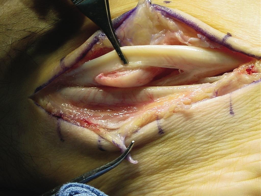 peroneal-tendinopathy-9